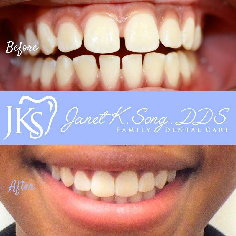 Janet K. Song, DDS