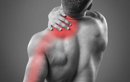 La Névralgie cervico-brachiale (NCB)