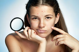 bigstock-Girl-with-a-pimply-face-holdin-