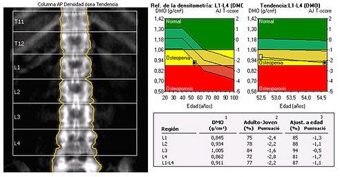 densitometria osea 4.jpeg