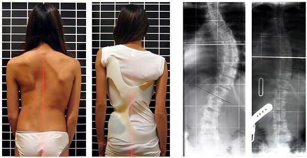 800px-Scoliosis_patient_in_cheneau_brace