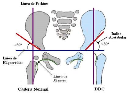 lineas-referencia-en-radiografia.jpg