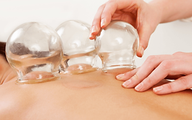 Cupping 3.png