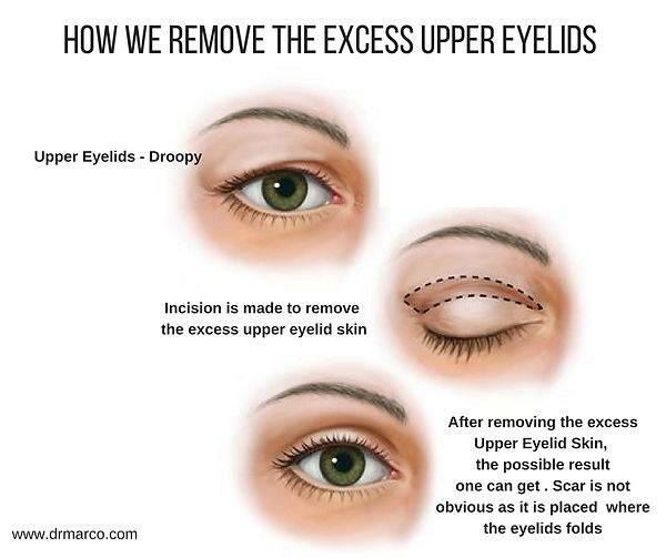 How-do-we-remove-excess-upper-eyelids-sk