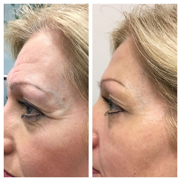 Before and After Medical Skin and Laser