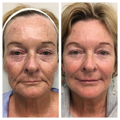 Dermal Filler Before and after botox