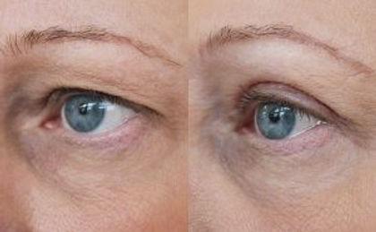 Upper-blepharoplasty Medical Skin and Laser