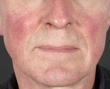 Rosacea Medical Skin and Laser