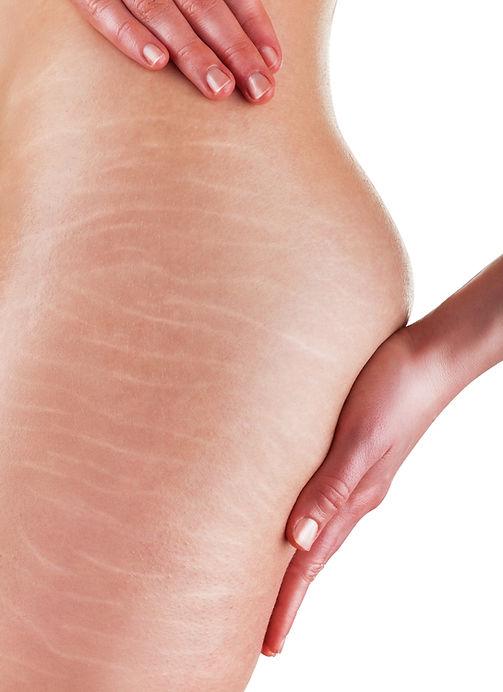 Stretch Marks Medical Skin and Laser