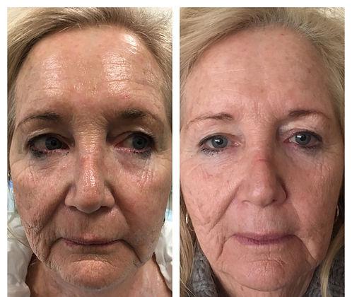 Before Medical Skin and Laser