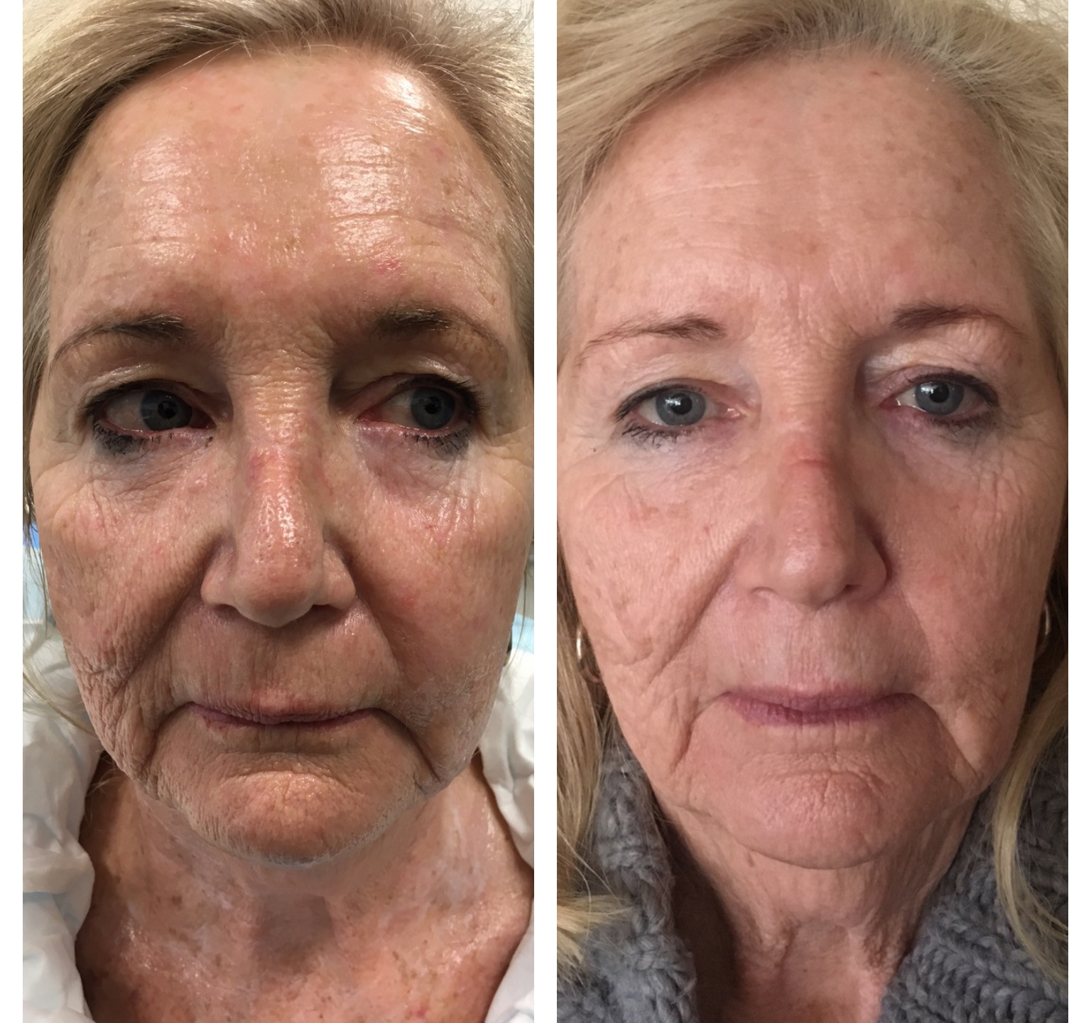 Collagen induction with RF Needling
