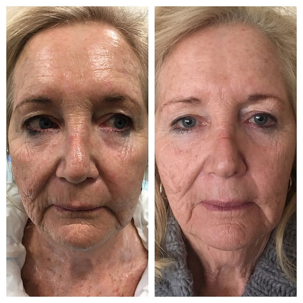 facelift, Anti-ageing, botox, filler, dysport, look younger, laser