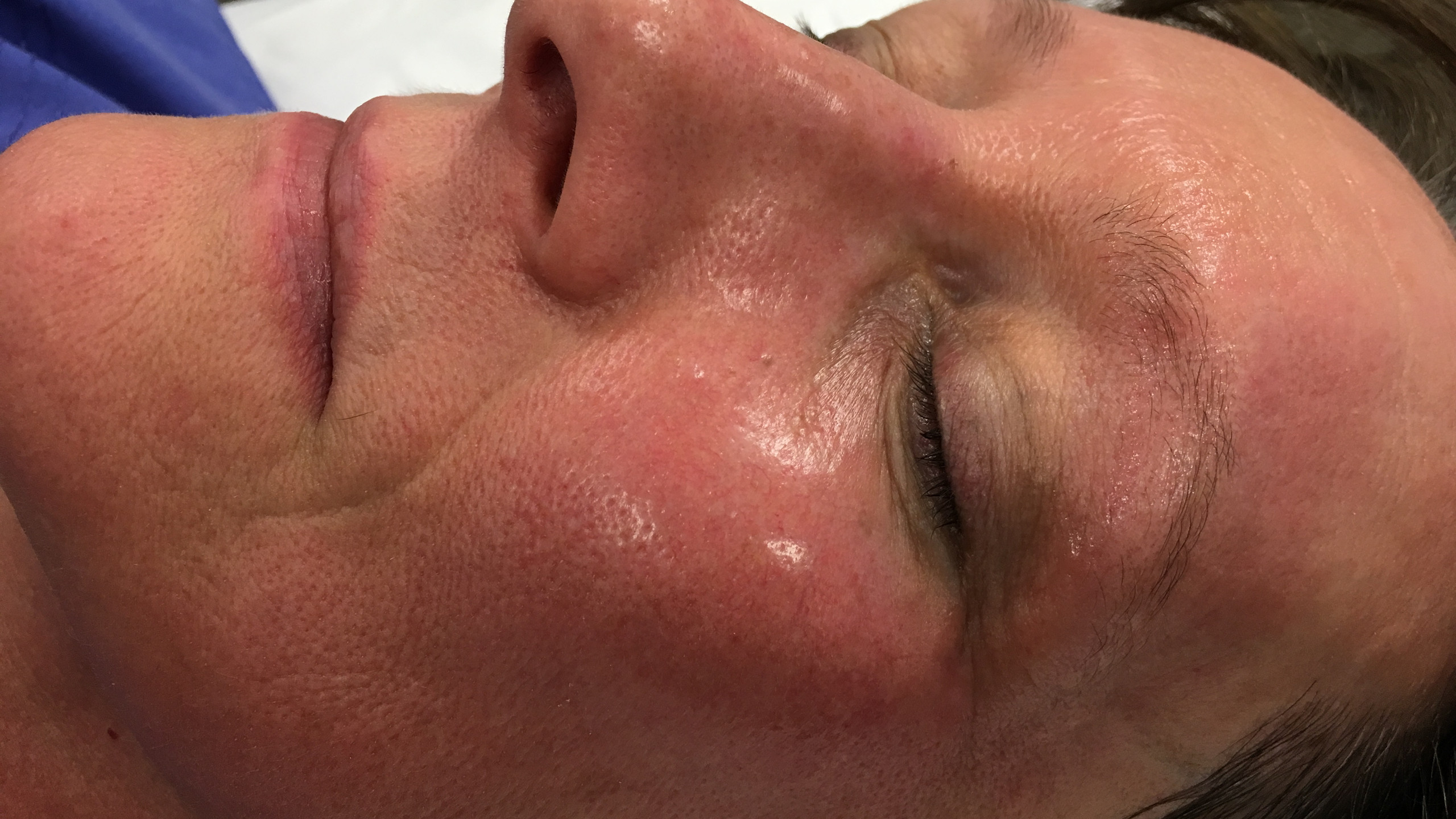 Collagen induction via heat