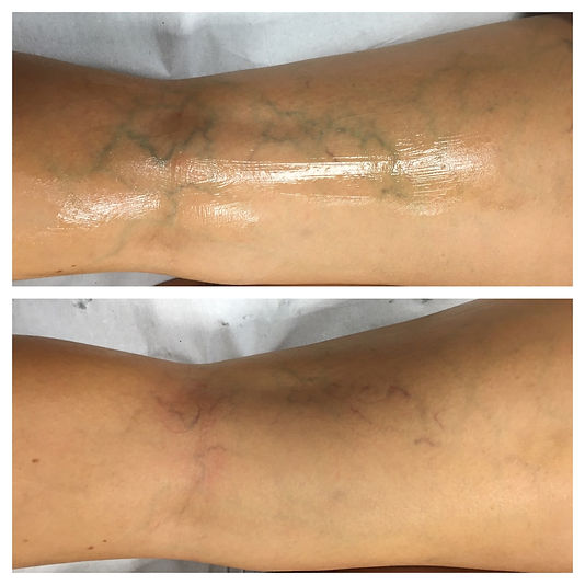 Veins Before and After Medical Skin and Laser