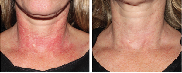 Red Neck Medical Skin and Laser