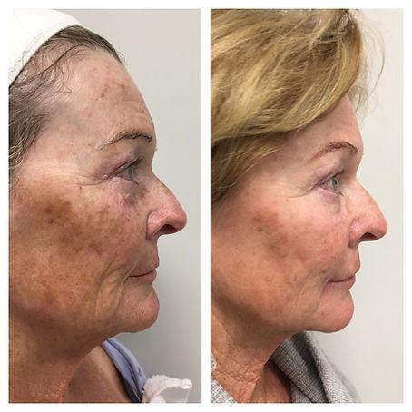 Wrinkle Relaxer Botox Dysport Medical Skin and Laser
