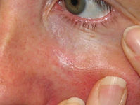 Morphoeic bcc Medical Skin and Laser