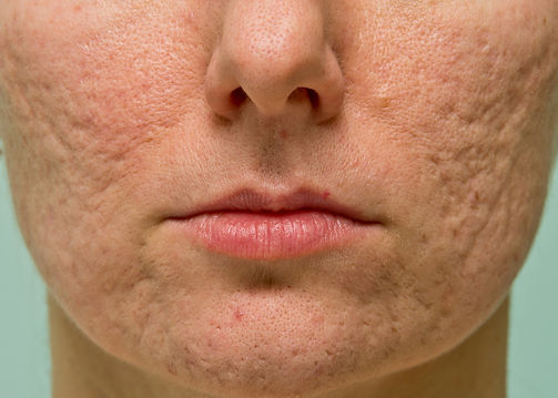Facial Scars Medical Skin and Laser