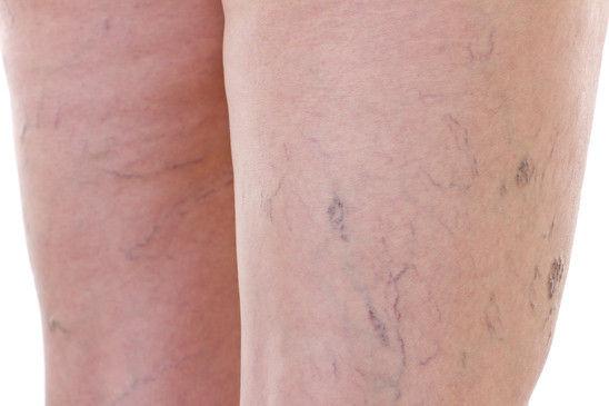 Spider Veins Medical Skin and Laser