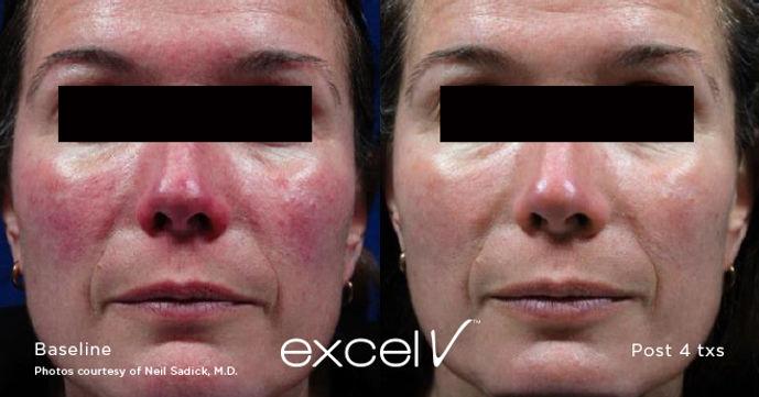 Excel V Laser - Medical Skin and Laser