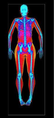 DEXA-scan-cover-image-1_edited.jpg