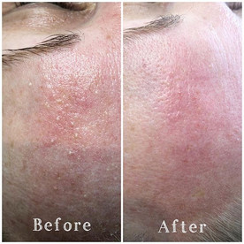 Milia removal £50 for a 30 minute slot t