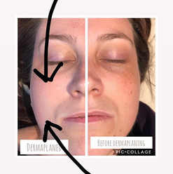 Dermaplaning and chemical peels are each