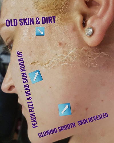 DERMAPLANING⁣ ⁣ What are the main benefi
