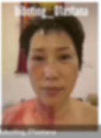 процедура омоложения лица, шеи без хирургии