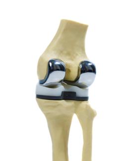 protese-do-joelho-1.png