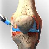 PRP-for-Osteoarthritis.jpg
