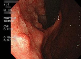 胃の画像.jpg