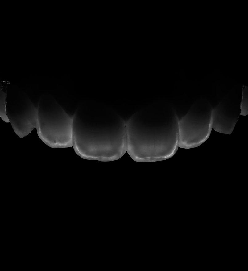 Transluminacionfb0.jpg