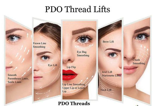 PDO-threading-1024x791.jpg