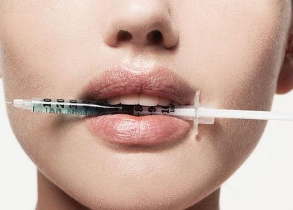 Botox-Lip-Fillers-Basildon.jpg