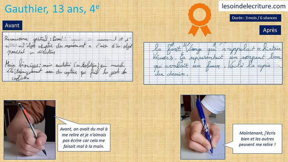 Diplôme Gauthier rééducation écriture graphothérapie avant après
