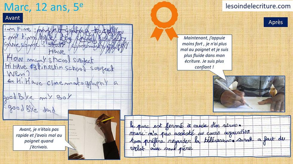 Dipôme Marc écriture rééducation avant a