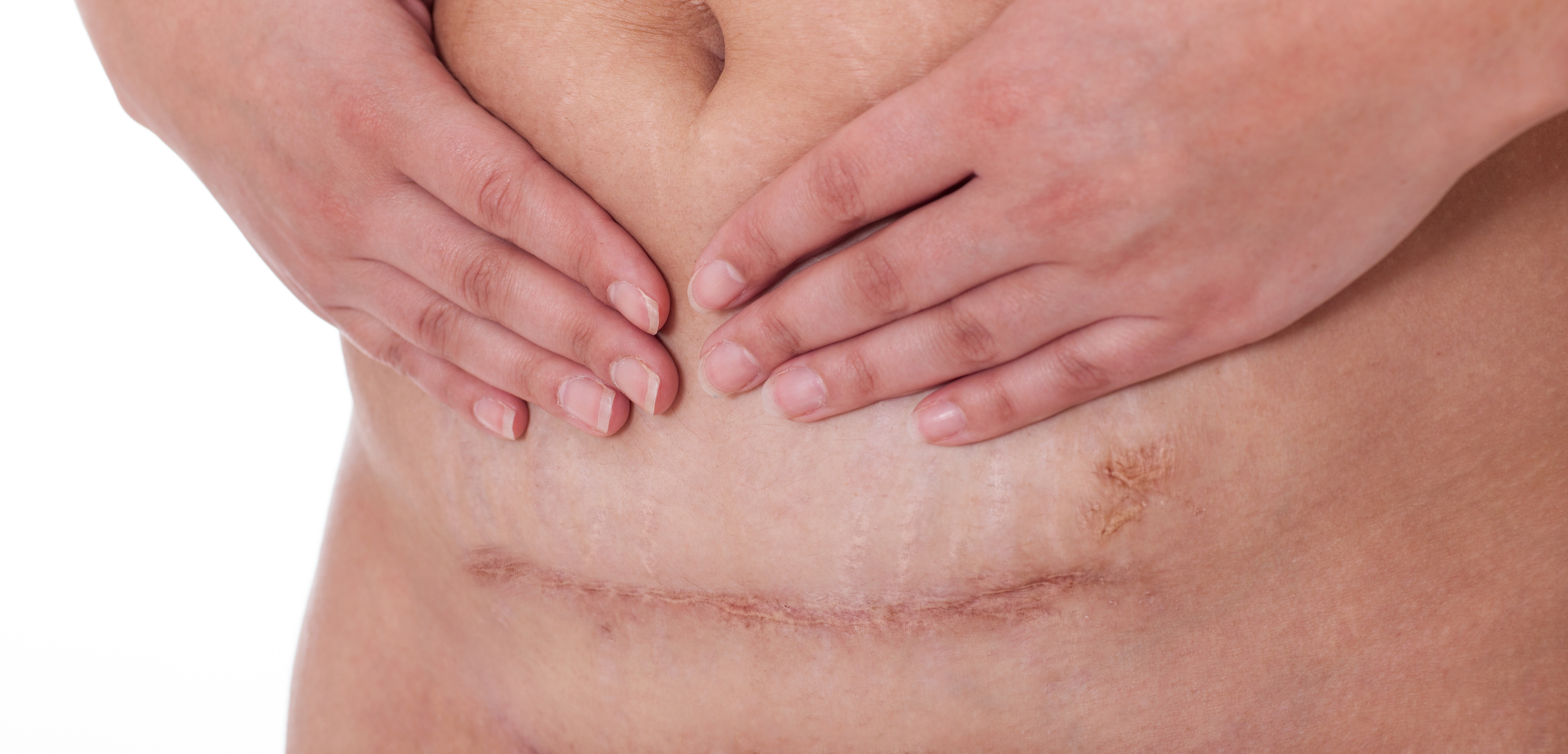Sharp cramping pains in my c-section scar during pregnancy