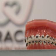 Orthodontic Damon System
