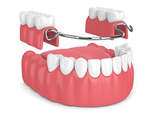 IMG-removable-partial-denture-GettyImage