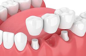IMG-dental-bridge-GettyImages-941012812.