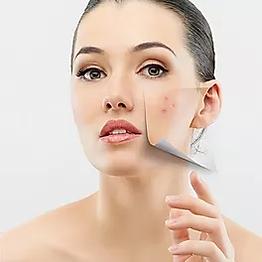 bioacne facial