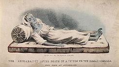 cholera_death.jpg