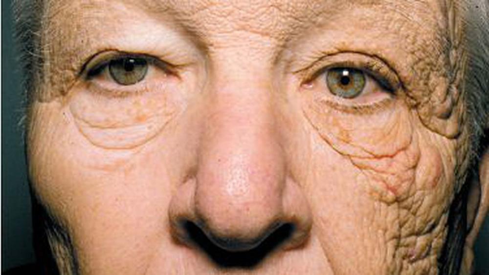 formation prévention du vieillissement en naturopathie
