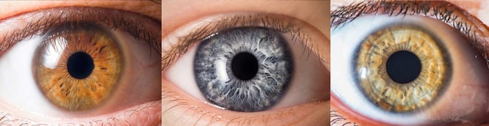 Étude des différences d'iris durant la formation de naturopathe