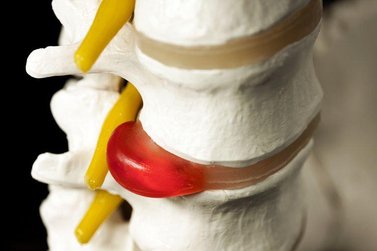 รักษาหมอนรองกระดูกทับเส้น