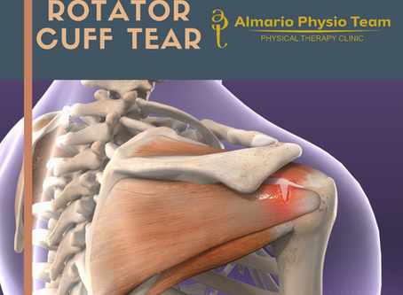 CASECON: Rotator Cuff Tear
