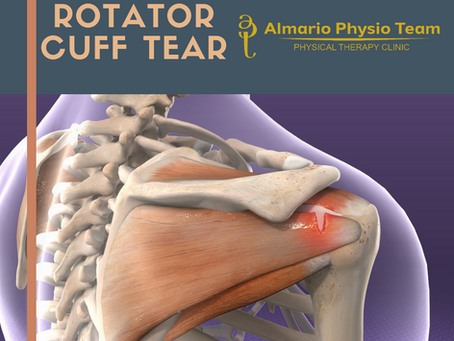 CASECON: Rotator Cuff Tear