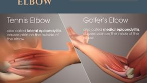 CASECON: Tennis Elbow (Lateral Epicondylitis) & Golfer's Elbow (Medial Epicondylitis)