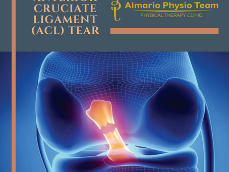 CASECON:  Anterior Cruciate Ligament (ACL)